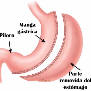 Diagnóstico y tratamiento-Cirugía de la Obesidad