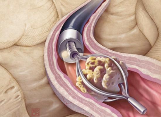 Urólogo en Hermosillo